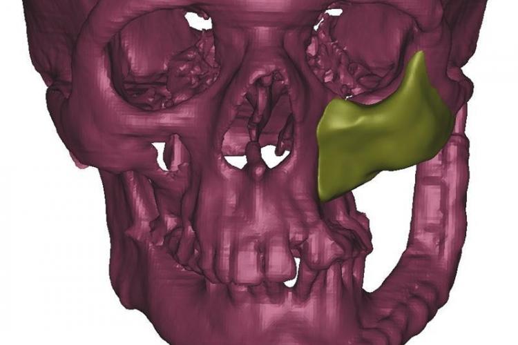 Chirurgii clujeni i-au refăcut fața unui pacient din TITAN. Operația e o PREMIERĂ - VEZI FOTO