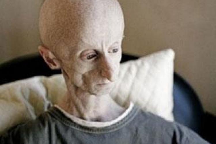 FOTO - Omul-Extraterestru locuieste in Africa! Barbatul sufera de o boala rara si este DJ!