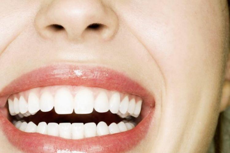 Cum să îți albești dinții acasă VIDEO