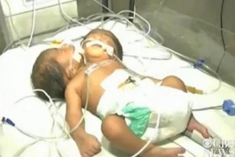 Bebeluș născut cu două capete. Ce decizie au luat medicii - FOTO