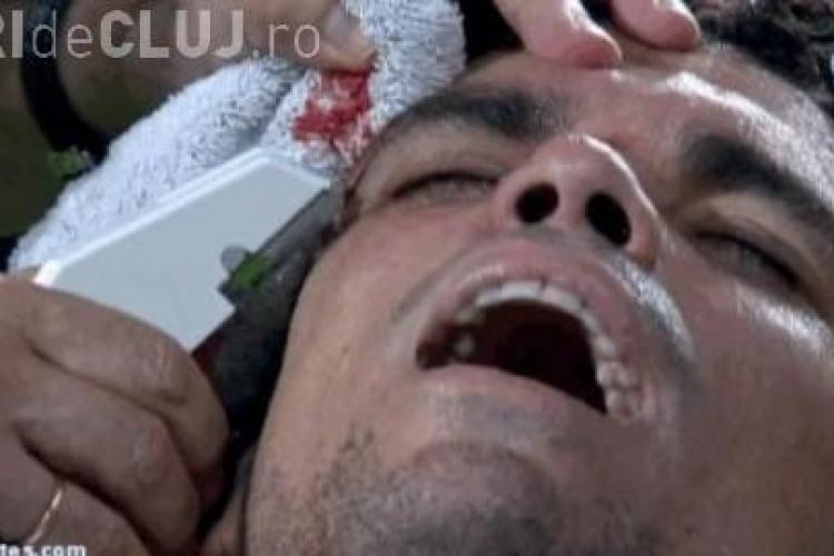 Accidentare horror la meciul lui Real Madrid. Pepe a fost cusut pe viu - VIDEO Imagini șocante