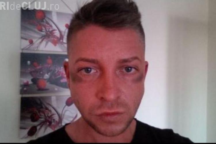 Partenerul de emisiune al lui Bendeac a fost bătut de poliție...din greșeală