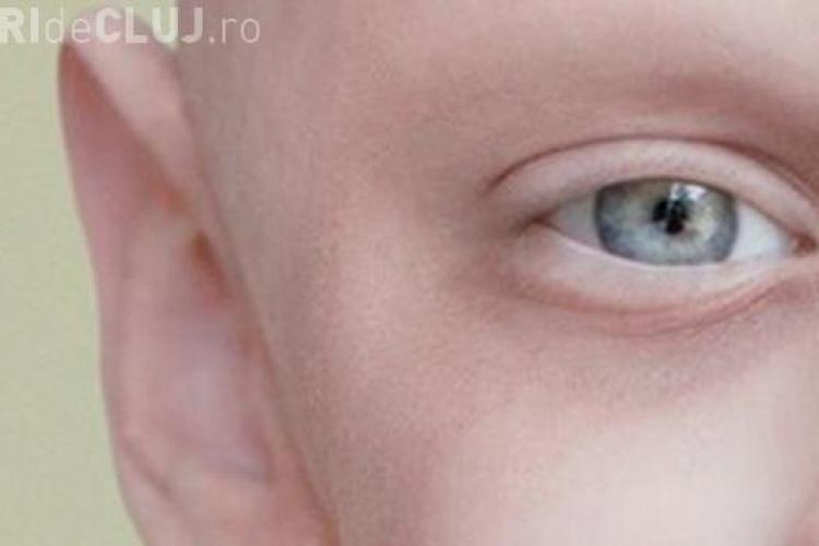 Fotografia unui băiat bolnav de leucemie a emoţionat o lume! Ce mesaj ascunde
