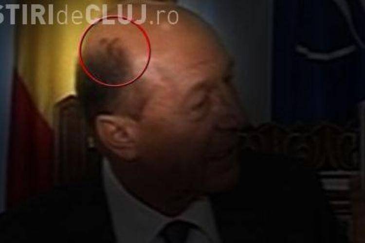 Basescu are pete ciudate pe cap. Este seful statului bolnav? - FOTO