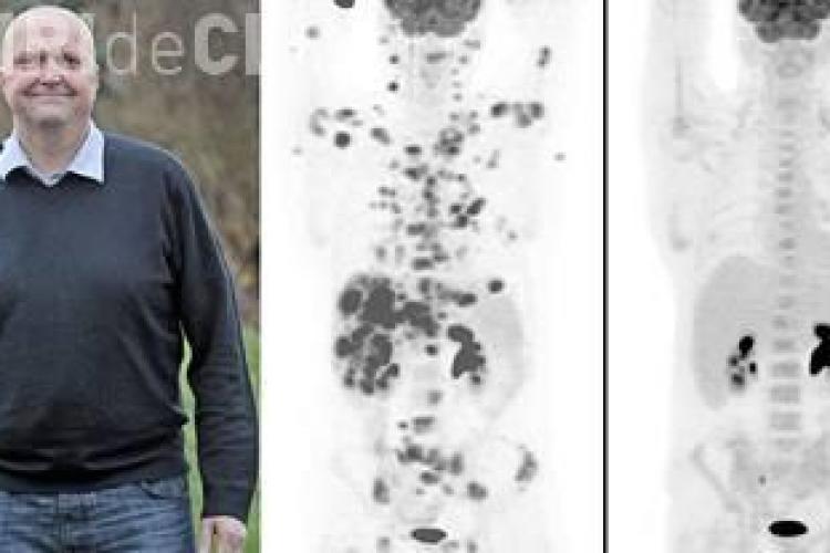 Vindecare miraculoasă de cancer a unui bărbat în 12 săptămâni. Care este tratamentul