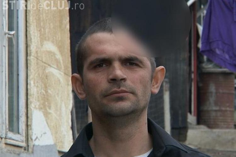 Clujeanul care trăiește cu numai jumătate de craniu are nevoie de AJUTOR. 2500 lei l-ar salva