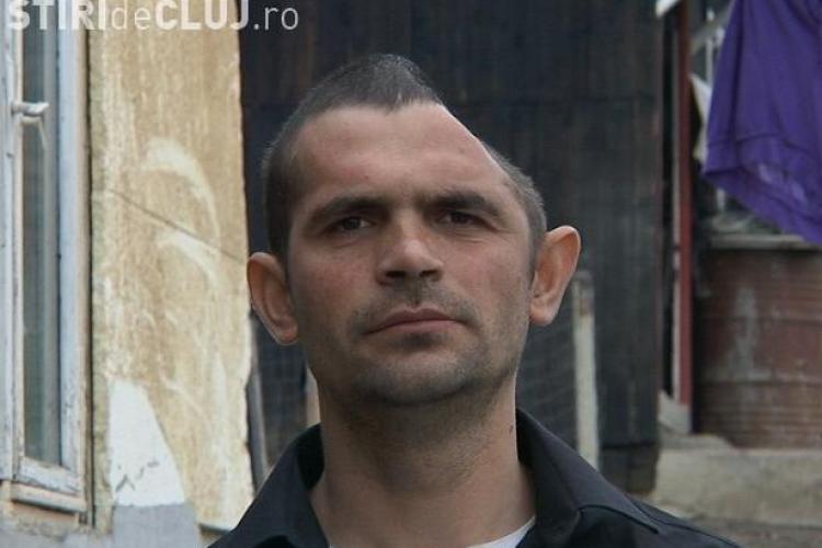 Clujeanul cu jumătate de craniu a apărut în presa din Marea Britanie - VIDEO