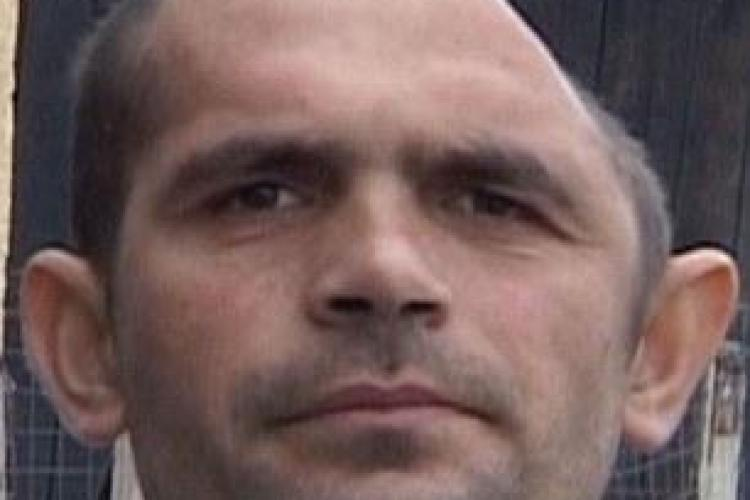 """Cum arată clujeanul care a trăit 11 luni cu jumătate de craniu, după ce a fost """"reîntregit"""" VIDEO"""