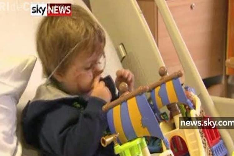 Copil de doi ani, muscat de fata de cainele bunicilor - VIDEO - Atentie Imagini SOCANTE