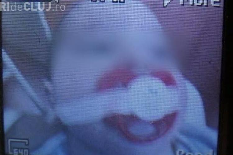 Socant! Gura unui bebelus a fost lipita cu leucoplast pentru a nu striga - FOTO