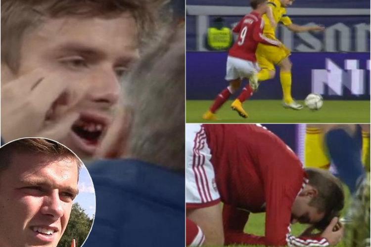 Sânmărtean aproape i-a rupt doi dinți unui danez. L-a lovit cu cotul în figură - FOTO