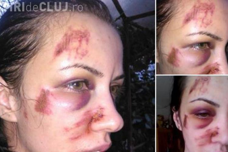 Româncă bătută crunt de fostul iubit. Ce răspuns a primit de la Poliție