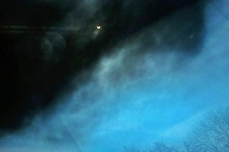 Cluj: Glumă macabră de Eclipsă. Un medic s-a uitat la soare prin radiografia unui bolnav de cancer - FOTO