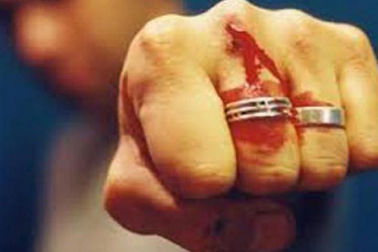 Militarul NATO s-a MUTILAT singur la Cluj-Napoca? Rezultatul ANCHETEI!